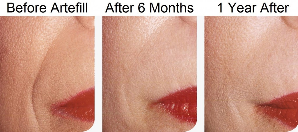 Before and After Artefill