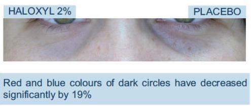 Haloxyl for Dark Circles