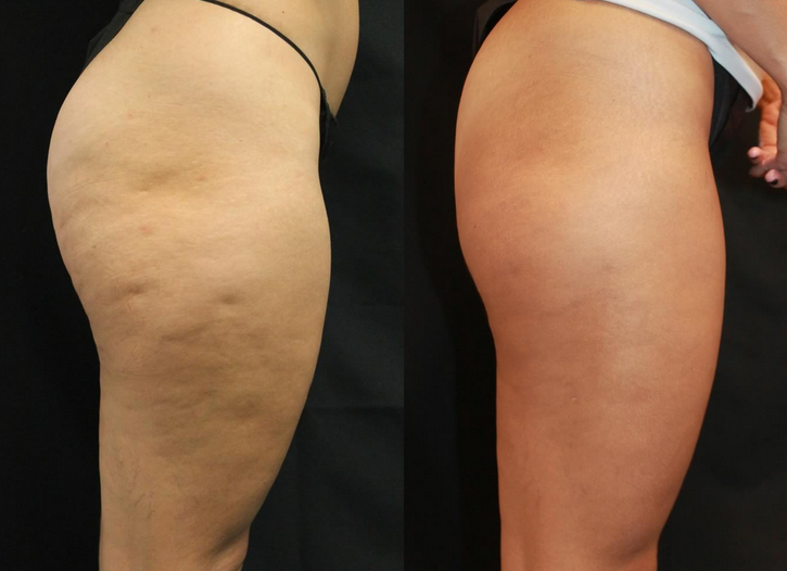 Before and After the Treatment